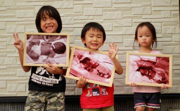 小さく生まれた赤ちゃんのことを知ってほしい。「世界早産児デー」に写真展開催へ クラウドファンディングで支援募る
