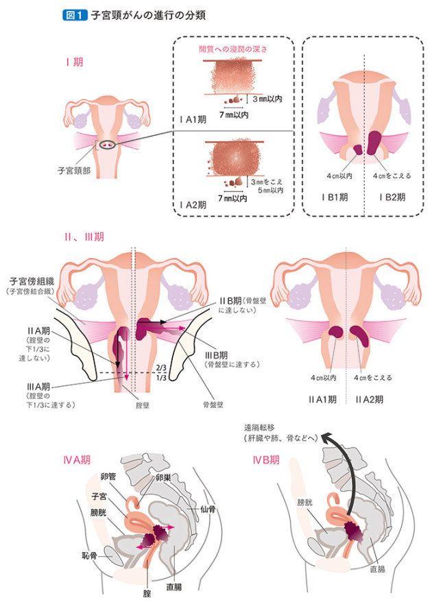 患者さんとご家族のための子宮頸がん 子宮体がん 卵巣がん 治療ガイドライン 第2版 日本婦人科腫瘍学会編集