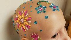 脱毛症で髪が抜けた女の子、キラキラヘアスタイルで登校(画像)