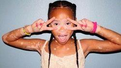 白斑とともに生きる。10歳のモデル、エイプリルちゃんが教えてくれること