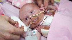 生まれつき心臓が露出していた赤ちゃん、体内に戻す手術が成功
