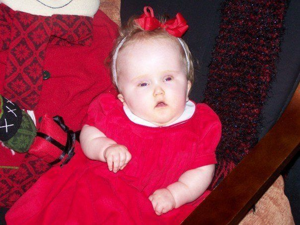Zoe at Christmas, before we were admitted into the hospital.