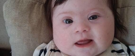 「わあ、見える!」視力の弱い赤ちゃん、メガネをかけた瞬間(動画)
