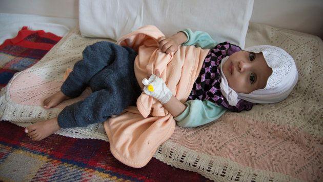 急性の栄養不良と診断されたイエメンの子ども
