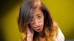 「世界一醜い女性」と言われたリジーさん ネット上の嫌がらせを受け、こう訴える