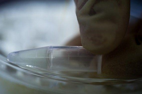 骨の替わりになる「骨組織再生ゲル」の開発に成功
