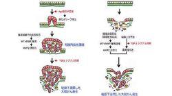 大腸がんの悪性化、慢性炎症が影響していると判明