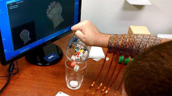 四肢麻痺における筋応答の部分的回復