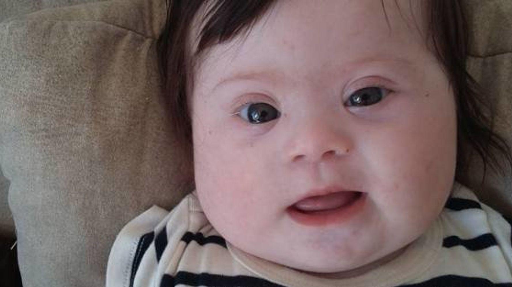 赤ちゃん ダウン症 キンタロー