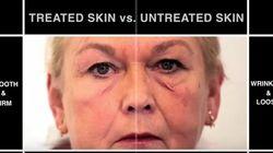 シワやたるみが一瞬で消える。「第二の皮膚」をMIT研究者らが開発 医療への応用にも期待(動画・画像)