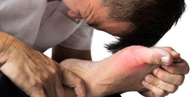 痛風の発症に関わる5つの遺伝子発見