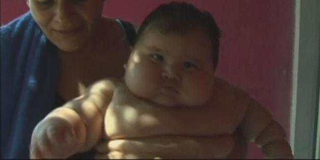 コロンビアで体重20キロの「メタボ赤ちゃん」