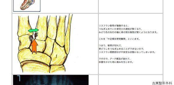 羽生結弦選手、左足リスフラン関節靭帯損傷で全治2カ月。どんな症状?