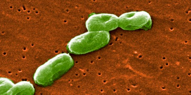 Scanning Electron Micrograph of Burkholderia cepacia. (Photo by: Media for Medical/UIG via Getty