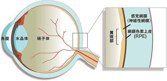 iPS細胞の移植、1年後も経過良好 世界初の網膜手術