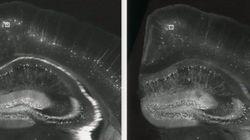 脳を膨らませてナノスケールの細部を観察