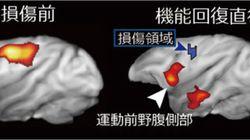脳損傷で肩代わりする別の領域を解明