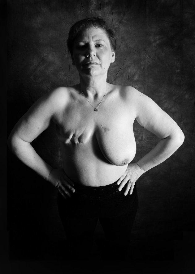 乳がんで胸を失った。私を見て欲しい