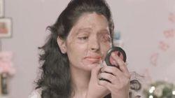 アシッド・アタック被害者の女性が、メイク指導動画で訴える現実