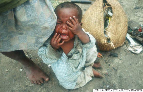 マダガスカルは危機的な食糧危機にさらされている