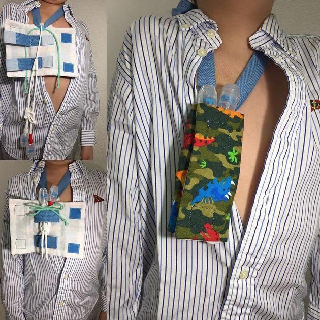 (左上)胸からブラリと出ているカテーテル(左下)カテーテルを曲げてひもでしばり、さらにマジックテープ付きのベルトで留める(右)さらにそれを布で覆い、首から下げる=石嶋瑞穂さん提供