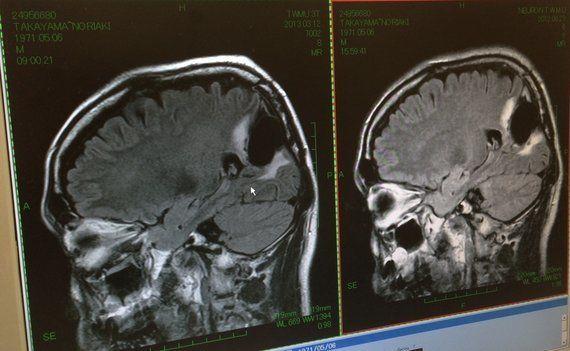5年生存率25%と40%。僕が脳腫瘍と白血病の闘病記を書く理由