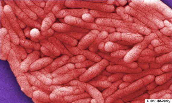 食中毒を起こす菌が役に立つ? 悪性脳腫瘍の新しい治療法、デューク大学が発表