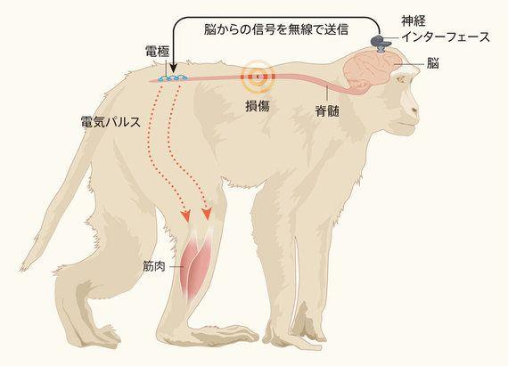 脊髄損傷サルに歩行を取り戻させた装置