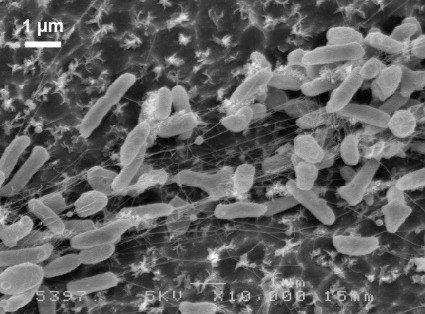 ペットボトルの樹脂を食べる細菌、日本の研究チームが発見