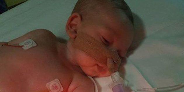 尊厳死裁判の赤ちゃん、両親が治療を断念