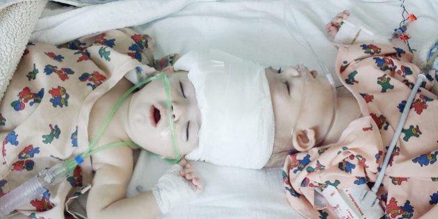 「きょうが二度目の誕生日だね」頭部が結合した双子の赤ちゃん、分離手術が無事成功
