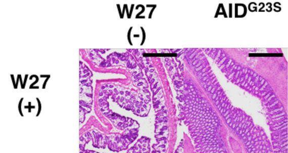 腸粘膜が分泌する、悪玉菌を一括して抑えるIgA抗体を発見!