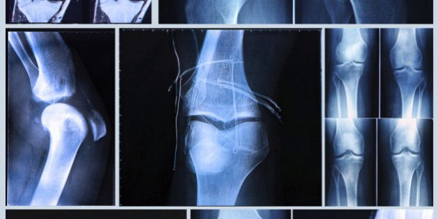 Knee X-ray and MRI befor and after arthroscopic surgery for Anterior cruciate ligament