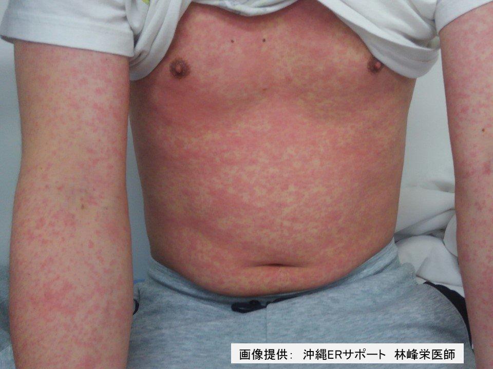 麻疹(はしか)を理解し、身を守るための21の