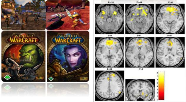 ゲームの依存性に注意。患者の脳に見られる特徴的な反応がアルコール・ギャンブル依存に酷似