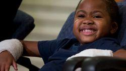 8歳の少年、世界で初めて両手の移植手術を受ける「最後まで諦めてはいけない」【動画】