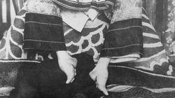 中国の女性はなぜ足を小さくさせられたのか。纏足(てんそく)の理由、新説が研究で明らかに