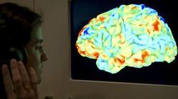 外傷性脳損傷でのシス型リン酸化タウによるタウオパチー