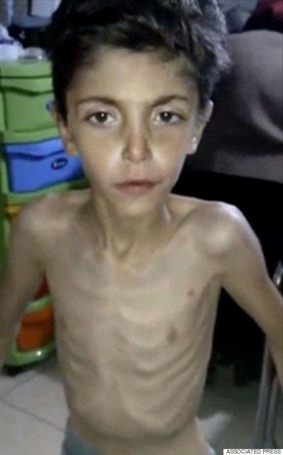 包囲されたシリアの都市マダヤで、自殺を図る子供たちが急増している
