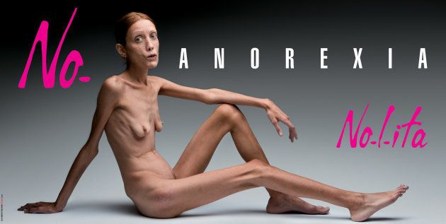 拒食症の女性モデルを起用したヌード広告(2007年)