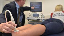 発見、超音波に皮膚の再生を促進する効果。副作用なし、3~4年後には実用化の可能性も