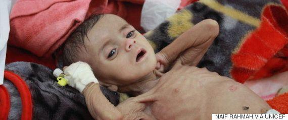 イエメンでコレラが拡大 ライフラインのフダイダ港が閉鎖の危機