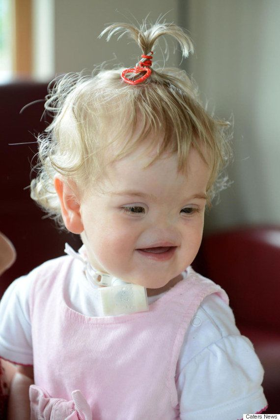 生まれつき鼻がない赤ちゃんの両親は訴える。「難病だからといって生むのをあきらめないで」