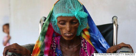中東イエメンでは、5歳未満の子供が10分おきに死んでいる「世界最大規模の人道危機だ」