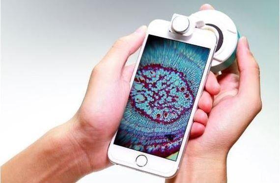 スマホがいつでも顕微鏡に 65グラムのポケットサイズのデバイスで