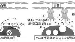 血管が網膜で排除される仕組みを解明