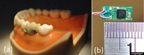 義歯型センサーで喫煙や間食を感知