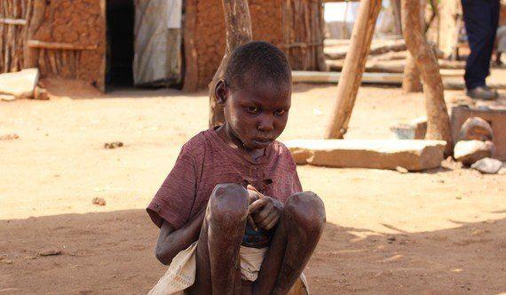 あなたはこの写真(南スーダン難民の男の子)に「見て見ぬふり」ができますか?
