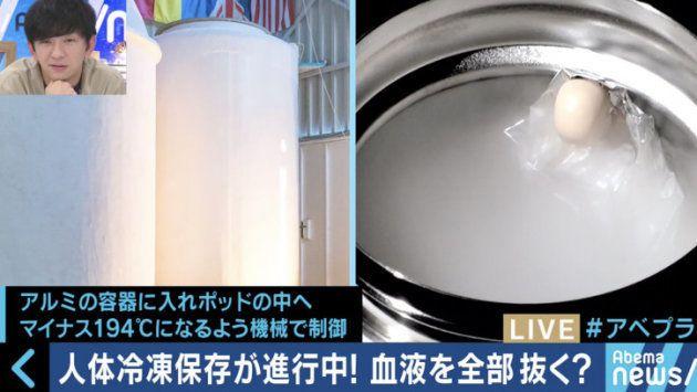 400万円で人体の冷凍保存が可能?