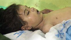 シリアで毒ガス攻撃か 少なくとも子供11人含む58人死亡